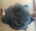 s頭頂部写真-20140909.jpg